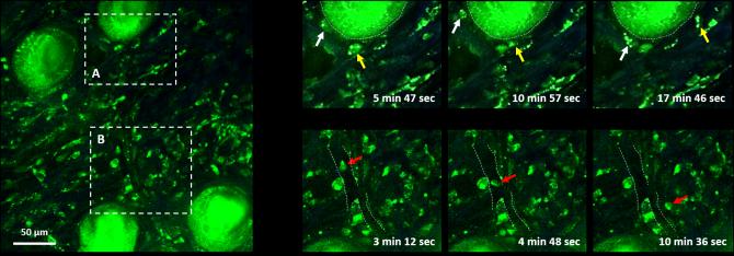 동물 모델의 피부조직에 항생제 물질로 염색 후, 진피 (dermis) 내 세포들의 움직임을 다광자현미경으로 실시간 관찰한 모습. - 포항공대 제공